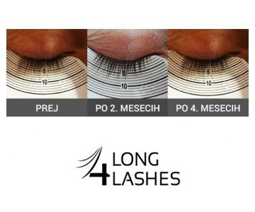 Long4Lashes GOLD serum za rast trepalnic (Serum za trepalnice Long4Lashes)